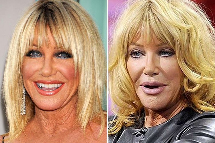suzanne-somers-2